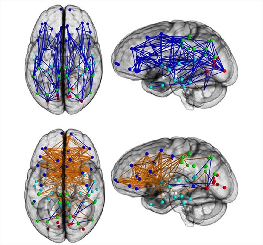CerImagen del estudio de la Universidad de Pensilvania que muestra las diferentes conexiones cerebrales que se producen en el cerebro dependiendo de si este viene insertado dentro de un bio-hombre o de una bio-mujerebro_Pikara
