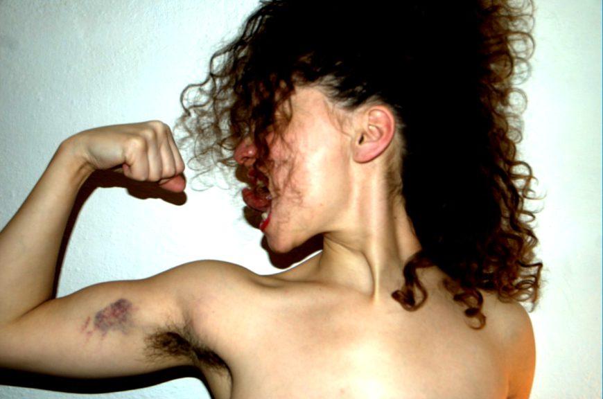 Alguien muestra sus músculos amoratados haciendo fuerza